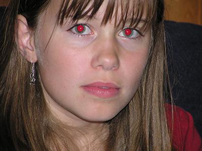 blixtar i ögat